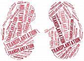 Kidney Transplantation. Word Cloud Illustration.