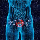 3D Render Medical Illustration Of The Bladder Pain