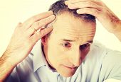 stock photo of hairline  - Above view of a man examining his hair - JPG