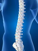 pic of scoliosis  - 3d rendered anatomy illustration of a human spine - JPG