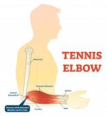 Tennis Elbow Medical Fitness Anatomy Vector Illustration Diagram With Arm Bones, Joint And Muscles.  poster
