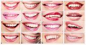 Lipsticks. Set Of Women's Lips. Toothy Smiles