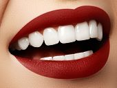 Perfect Smile After Bleaching. Dental Care And Whitening Teeth. poster