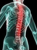 image of spine  - 3d rendered anatomy illustration of a human skeleton with painful spine - JPG