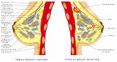 Breast Anatomy. Female Breast Anatomic Cross Section For Basic Medical Education, For Clinics & Scho poster