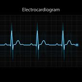 Electrocardiogram 2D Illustration