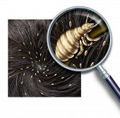 stock photo of lice  - Lice problem as a medical concept of a magnifying glass close up of a human head with an infestation of parasitic nits or eggs hatching from a louse insect as a symbol of diagnosis prevention and treatment for children and adults - JPG