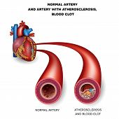 stock photo of atherosclerosis  - Normal artery and unhealthy artery with blood clot - JPG