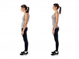stock photo of abdominal  - Woman with impaired posture position defect scoliosis and ideal bearing - JPG