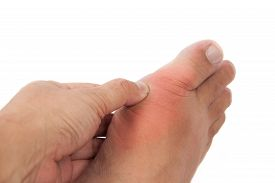 image of gout  - Hand embracing foot with deformed right toe due to painful gout inflammation - JPG