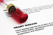 Forma de la enfermedad del corazón