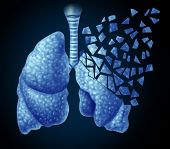 stock photo of respiratory disease  - Lung illness and losing human lungs health care concept as a decline in respiratory function caused by cancer or disease as the organ slowly breaks down in little pieces on a black background - JPG