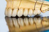 Постер, плакат: Керамические зубы мостовидного протеза