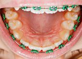 image of overbite  - Close up photo of teeth with orthodontic braces