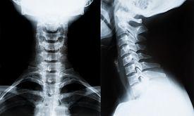 stock photo of spine  - X - JPG