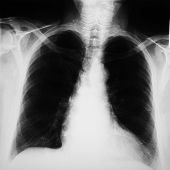radiograph of human chest