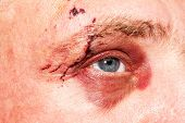 Male Eye With A Large Purple Bruise. Biting Dog On Face. Eye Injury. Large Bruising On The Male Eye. poster
