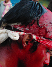 stock photo of muharram  - A shia muslim in lucknow india with blood drenched face after cutting his head for mourning the 40th day of martyrdome of Imam Hussain at Karbala Iraq some 1400 years ago.   - JPG