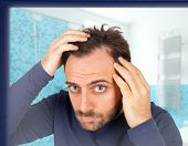picture of hairline  - Caucasian young man controls hair loss in the bathroom - JPG