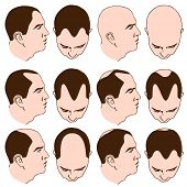 image of hairline  - An image of man with various receding hairlines - JPG