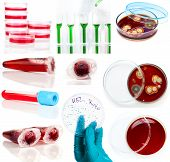 Set Of Laboratory Supplies. Petri Dish, Spectrophotometer Quvettes, Blood Test, Test-tube,