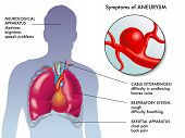 pic of atherosclerosis  - medical illustration of the main symptoms of aneurysm - JPG