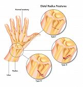 stock photo of epiphysis  - medical illustration of the various kinds of fracture of the distal radius - JPG