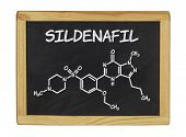 chemical formula of sildenafill on a blackboard