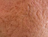 image of scars  - Close up of problematic skin with deep acne scars on cheek - JPG