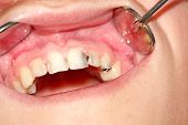 pic of bad teeth  - Carious front teeth of the upper jaw - JPG