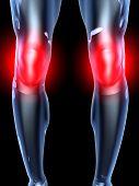 Knee Ache - Anatomy .