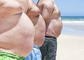pic of fat-guts  - Close up of three obese fat men on the beach showing their unhealthy bellies - JPG