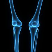 foto of knee-cap  - The knee joint joins the thigh with the leg and consists of two articulations - JPG