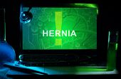 picture of hernia  - Notebook with words  Hernia  - JPG