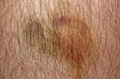 stock photo of bruises  - Nasty looking bruise on man - JPG