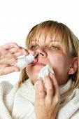Sick With A Rhinitis Woman Dripping Nose Medicine Isolated